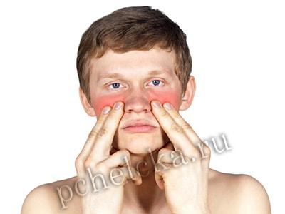 Воспалительные заболевания носа
